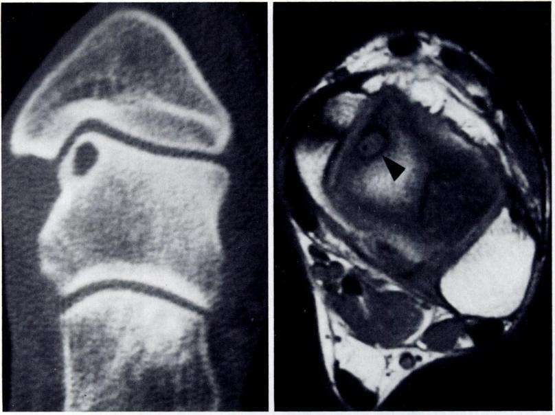 show the presence of a subchondral cyst in the anteromedial aspect of the talar dome (arrowhead).