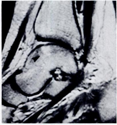 OSTEOCHONDRAL FRACTURES OF THE DOME OF THE TALUS 1147 Figs