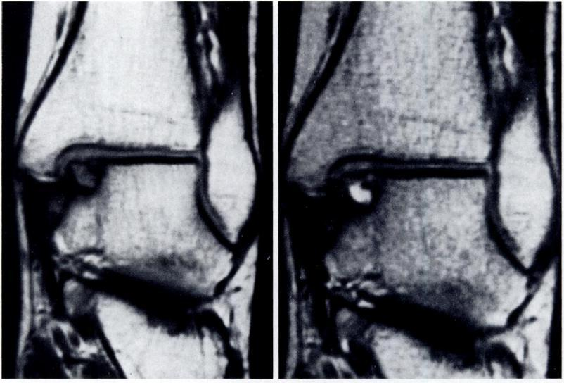 OSTEOCHONDRAL FRACTURES OF THE DOME OF THE TALUS 1149 iofibular syndesmosis, as described by Davidson et al.