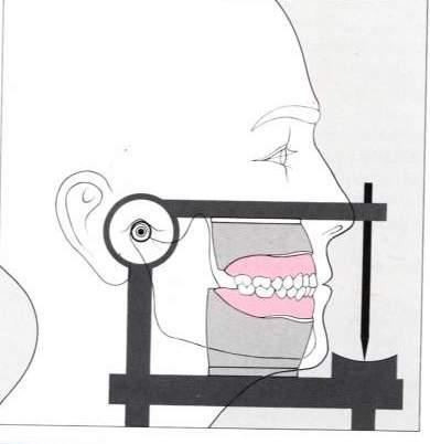 Articulators It is a mechanical device represents the TMJ, maxillary and mandibular arches.