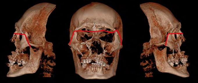 Le Fort III Level (transverse): Is otherwise known as craniofacial dissociation and involves the zygomatic arch. This may be caused by impact to the nasal bridge or upper maxilla.