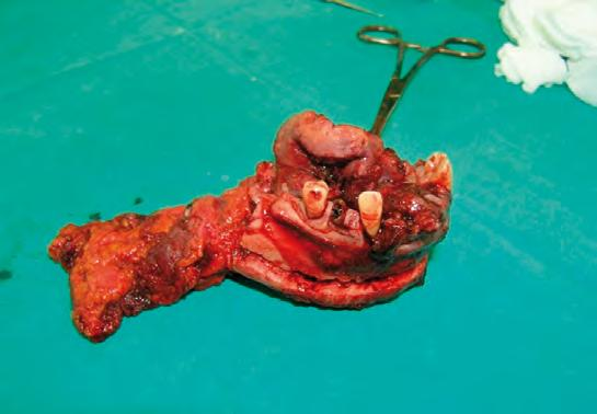 In this case, a marginal mandibular resection was the treatment of choice, performed en block with specimen