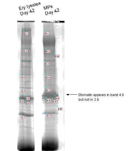 Figure 7 : 1D SDS PAGE Commassie blue stained. Equivalent loads (300 µg) of proteins were subjected to electrophoresis in a 12% SDS-PAGE.