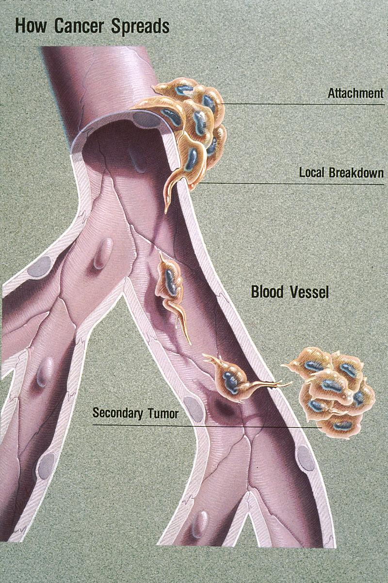 CONCEPT: METASTASIS Metastasis describes the ability of cancer cells to enter the bloodstream and travel to distant parts of the body Very few cells traveling through the bloodstream - First, the