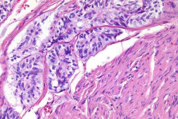 prominent and mitoses may be seen, but are usually not numerous
