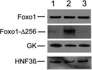 E724 Fig. 4. Western blot. Treated CD1 mice were killed after 1 wk of hepatic Foxo1-256 expression.