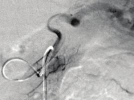 (c) A digital subtraction angiography with the catheter positioned in the proximal splenic artery, showing nodular vascularization from the arteria pancreatica magna (red arrow).