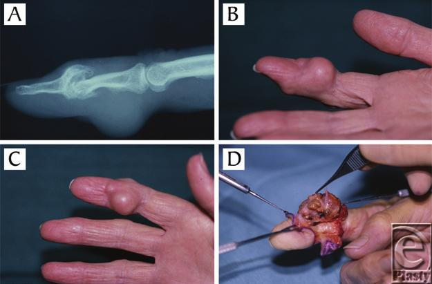 eplasty VOLUME 12 Figure 2. A 64-year-old woman with giant cell tumor of the tendon sheath (GCTTS) on the palmar aspect of the middle phalanx of the right index finger. (a) X-ray showing bony erosion.