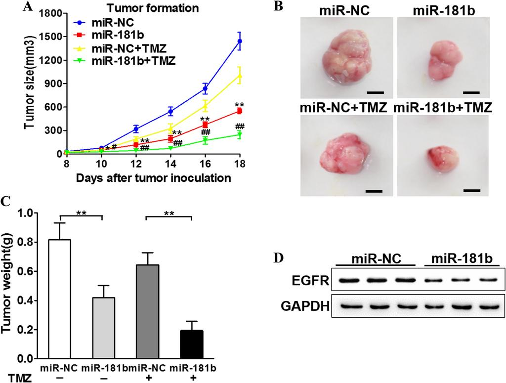 Fig. 5 MiR-181b enhances the chemo-sensitivity of temozolomide (TMZ) in vivo.