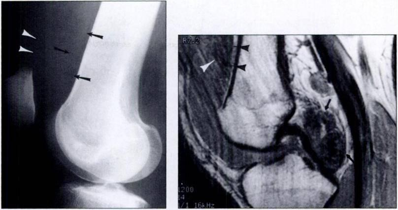 Fig. 2.-19-year-old man with pigmented villonodular synovitis of knee.