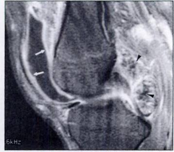 Similar low-signalintensity masses (arrowheads) are seen along postenor aspect of suprapatellar bursa.