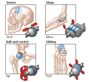 types of fixed joints