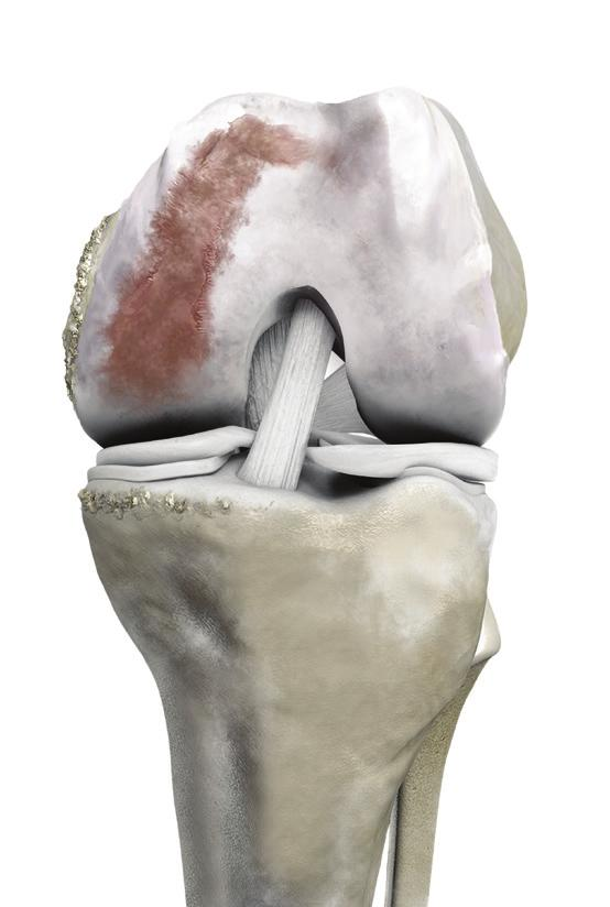CUSTOMIZED KNEE IMPLANTS. One Patient. One Implant. - PDF