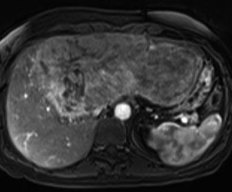 a Arterial-phase CT shows strong and progressive contrast enhancement, which is retained in the b delayed phase and is typical for peliotic changes in inflammatory adenoma a b and demonstrate higher