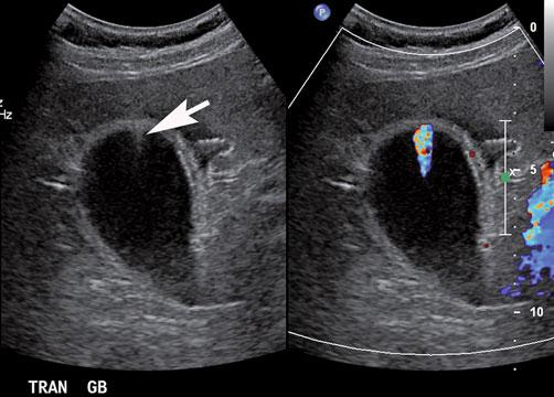 b Fat-saturated T2-weighted magnetic resonance imaging (MRI) shows two bright foci (arrow) in the wall of the gallbladder fundus that represent Rokitansky-Aschoff sinuses.