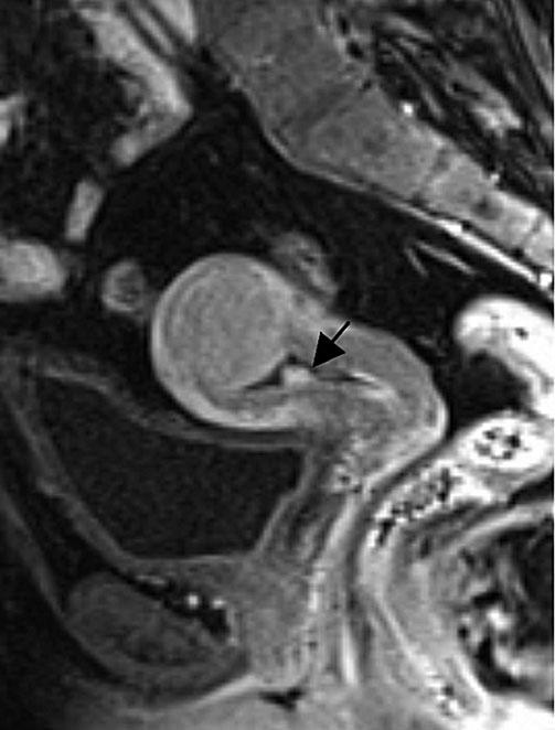 158 S. Ascher, C. Reinhold a Fig. 8. Endometrial polyp. Contrast-enhanced sagittal fat-suppressed T1-weighted magnetic resonance image (MRI) shows an enhancing lower-uterine-segment polyp (arrow).