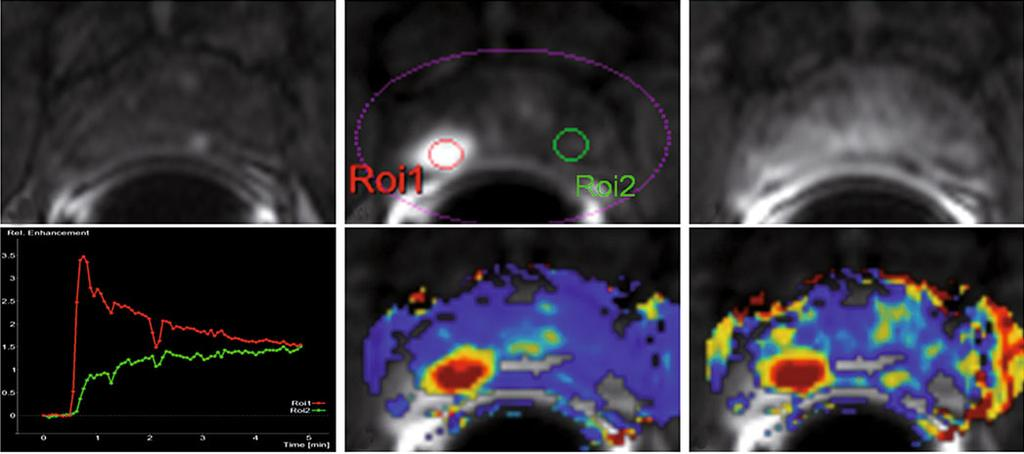 Multiparametric Magnetic Resonance Imaging in Prostate Cancer Detection 183 must be evaluated together with morphological imaging (T2w), especially when assessing the central portions of the prostate