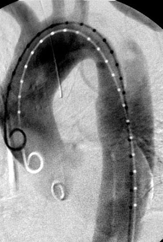 e CT after stent-graft implantation and closure of primary entry tear with false