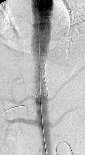 f Aortography post stent-graft implantation demonstrating spontaneous