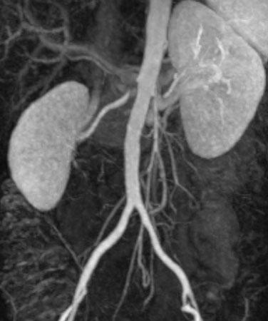 192 J. Lammer a b Fig. 2 a-d. Imaging and intervention in a patient with hypertension due to renal artery stenosis. a Magnetic resonance angiography (MRA) showing stenosis of right renal artery.