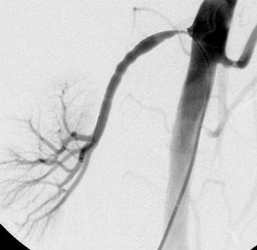 CTA CTA of the renal arteries has a 95% sensitivity to detect RAS and accessory renal arteries.