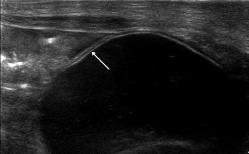 b Postnatal ultrasound (US) image shows gut signature of the cyst wall (arrow); during examination, intrinsic peristalsis of the cyst was seen Three US patterns can be distinguished [28]: Stratified