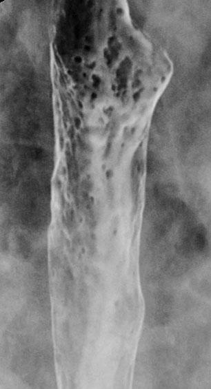 22 M.S. Levine Fig. 1. Candida esophagitis: there are multiple, plaque-like lesions of varying size in the mid esophagus.