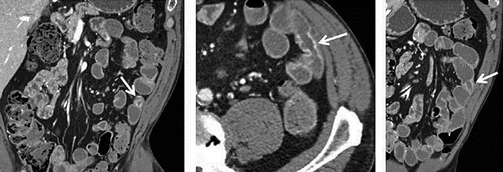 CT Enterography: Small Bowel Imaging That Impacts Patient Management 29 of CT denoising methods can increase the conspicuity of subtle small bowel lesions, such as carcinoid tumors.