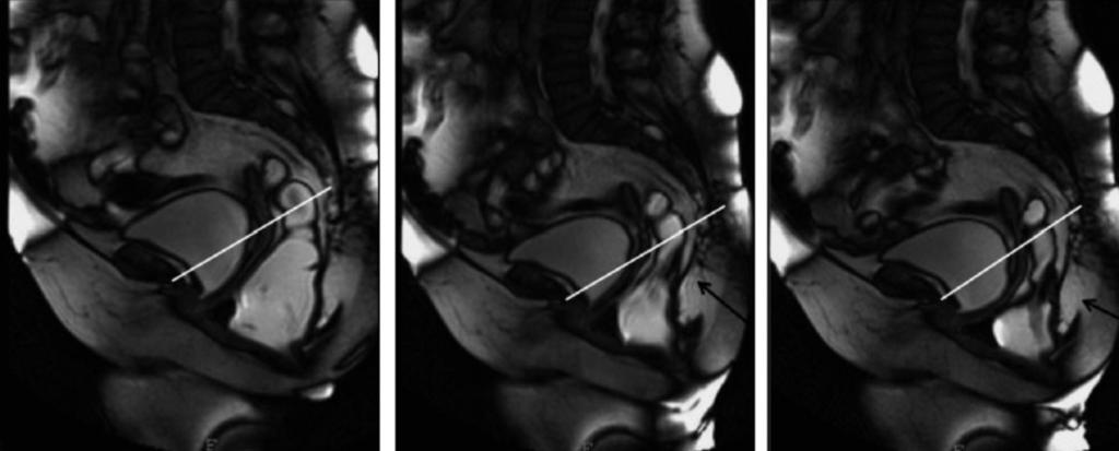 b Progressive straining shows rectal invagination above the rectocele. c Rectal invagination and rectocele are more evident at maximum straining during evacuation a b Fig. 5 a, b.
