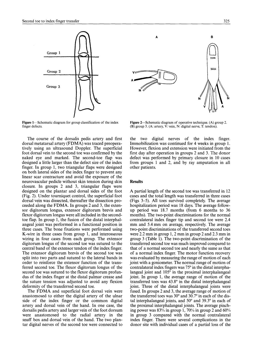 Second Toe To Index Finger Transfer Pdf Diagram 325 B Group 1 2 3