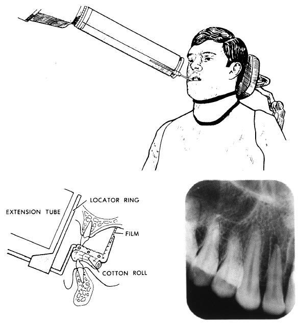 Dentalelle tutoring faulty radiographs pdf holding the film in place ccuart Image collections