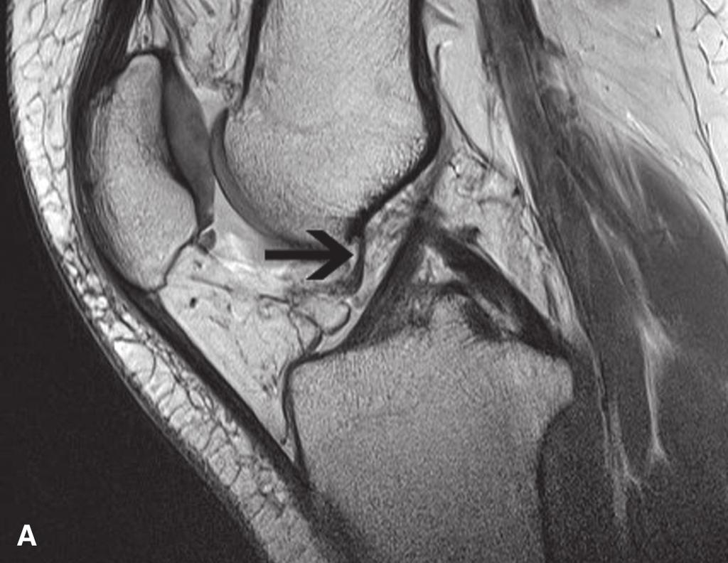 Asymptomatic and Symptomatic Synovial Plicae of the Knee Joint - PDF