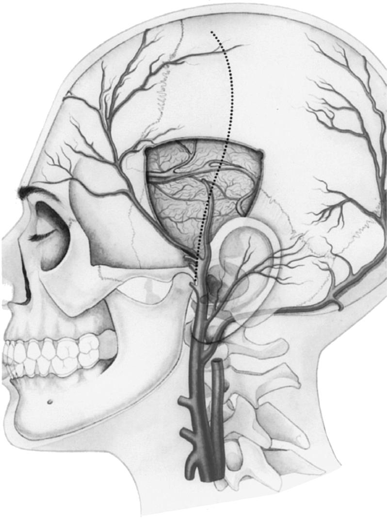 Superficial Temporal Artery to Middle Cerebral Artery Bypass - PDF