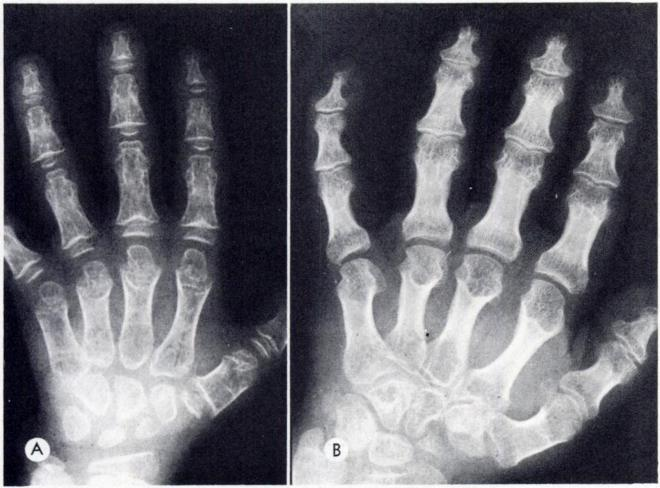 112 SCHORR ET AL. Fig. 10.-Hand of patient A., age 6. showing characteristic first metacarpal distal accessory ossifi cation centers, notched phalangeal ends. and coneshaped epiphyses.