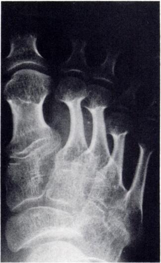 formation and kyphosis all clearly differentiate DMC syndrome from the Fig. 9.-Hand of patient S. A, Age 5. Small and irregular carpal bones with more severe involvement of proximal row.