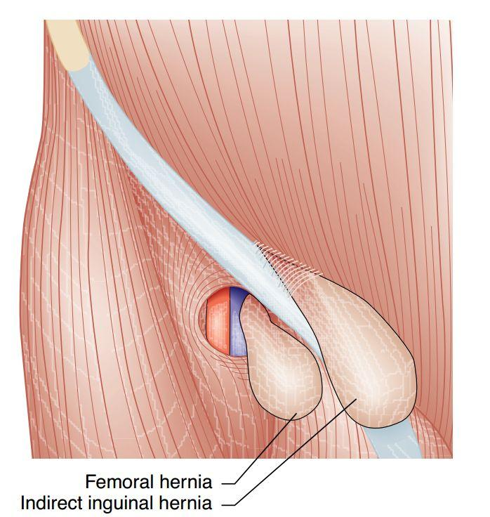 Fancy Direct And Indirect Inguinal Hernia Anatomy Inspiration ...