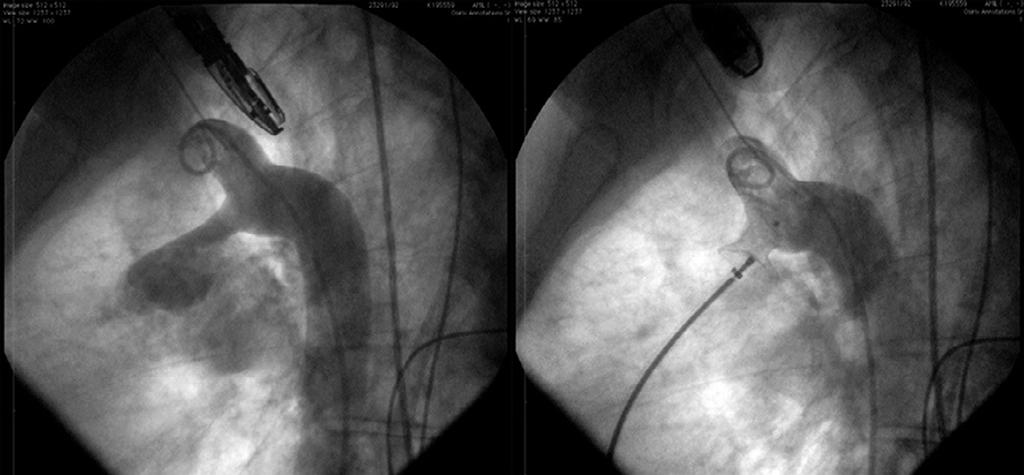 embolization 3 MO Perimembranous VSD + ossd Cera TM VSD Occluder type 18 mm + Cera TM SD Occluder 16 mm 4 LCMM Muscle VSD + PD Procedural characteristics Cera TM VSD Muscle Occluder 10 and 14 mm +
