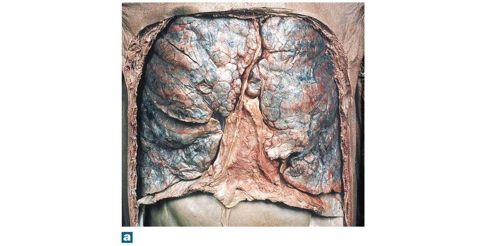 The Respiratory System - PDF