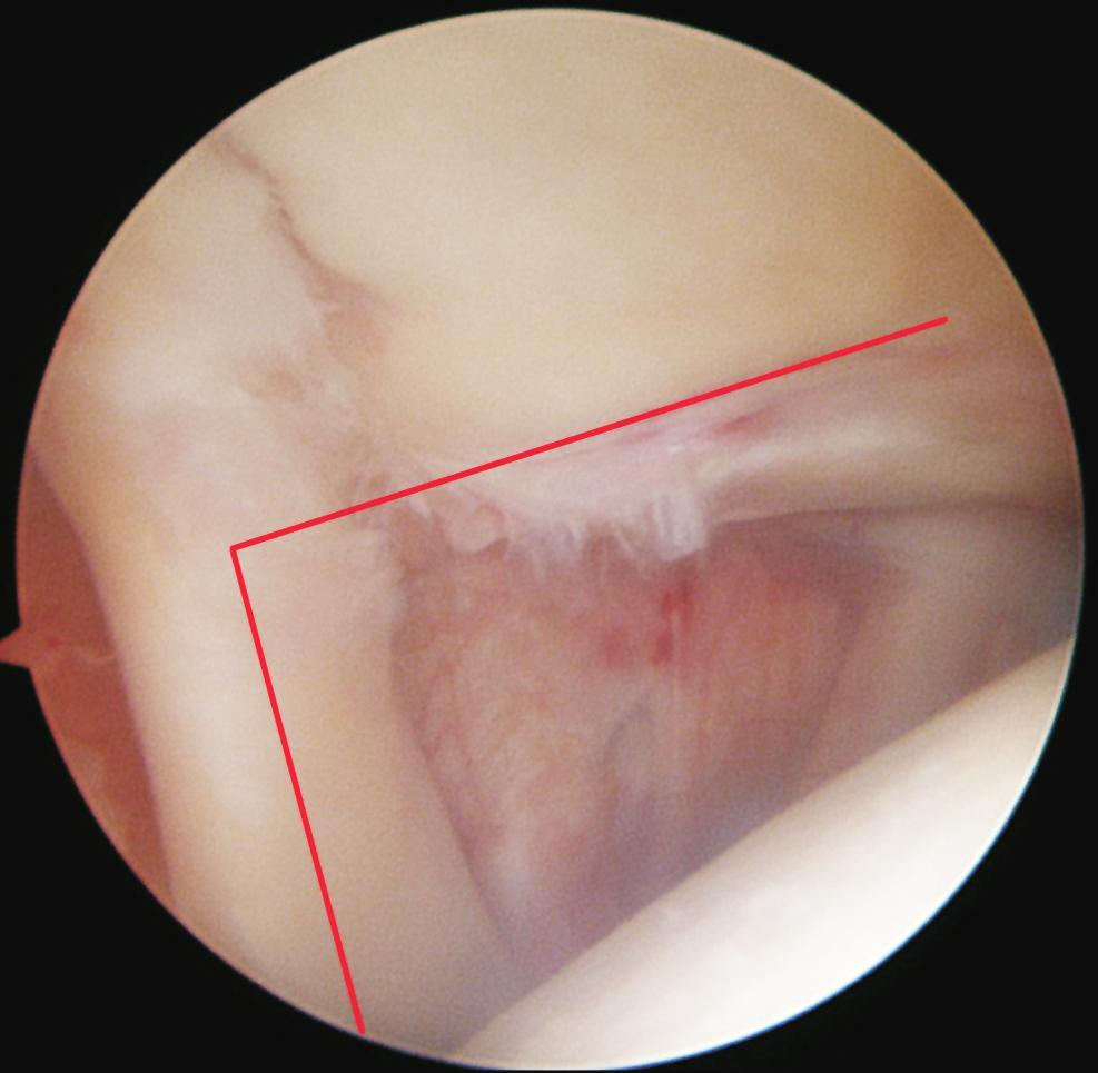 Arthroscopic Evaluation of Subluxation of the Long Head of the ...
