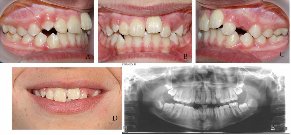 Treatment of Impacted Maxillary Central Incisor with Removable ...