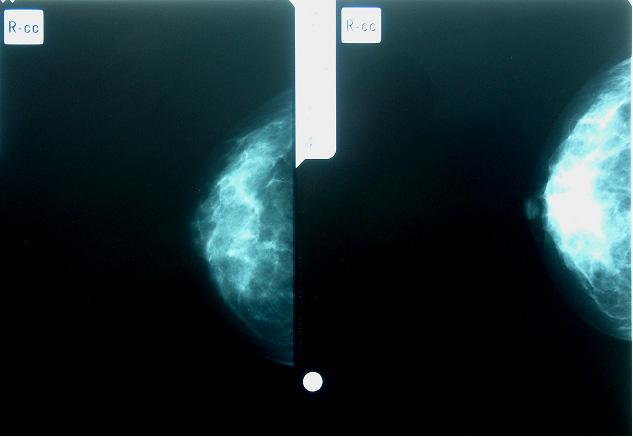 202 Mammography Recent Advances 2.09]) and 71%, respectively [1.56 1.87]), compared to never users (Aiello et al., 2006).