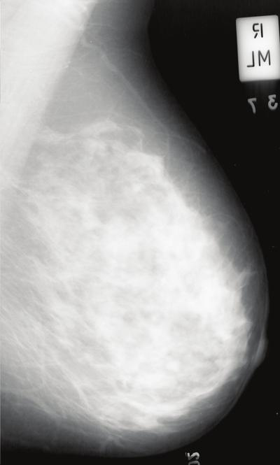 232 Mammography Recent Advances 16 Will-be-set-by-IN-TECH Fig. 7. Example mammographic segmentation. Tabár risk pattern IV; BIRADS risk pattern III.