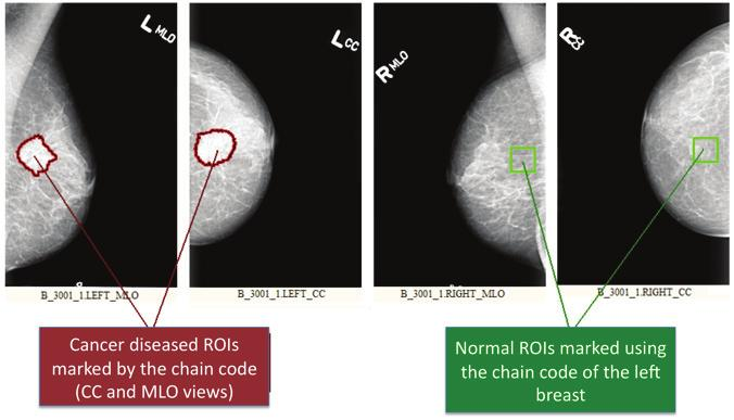 264 Mammography Recent Advances 4 Will-be-set-by-IN-TECH Fig. 1. Procedure applied for the selection of ROI s: images with malignant lesion and images no lesions.