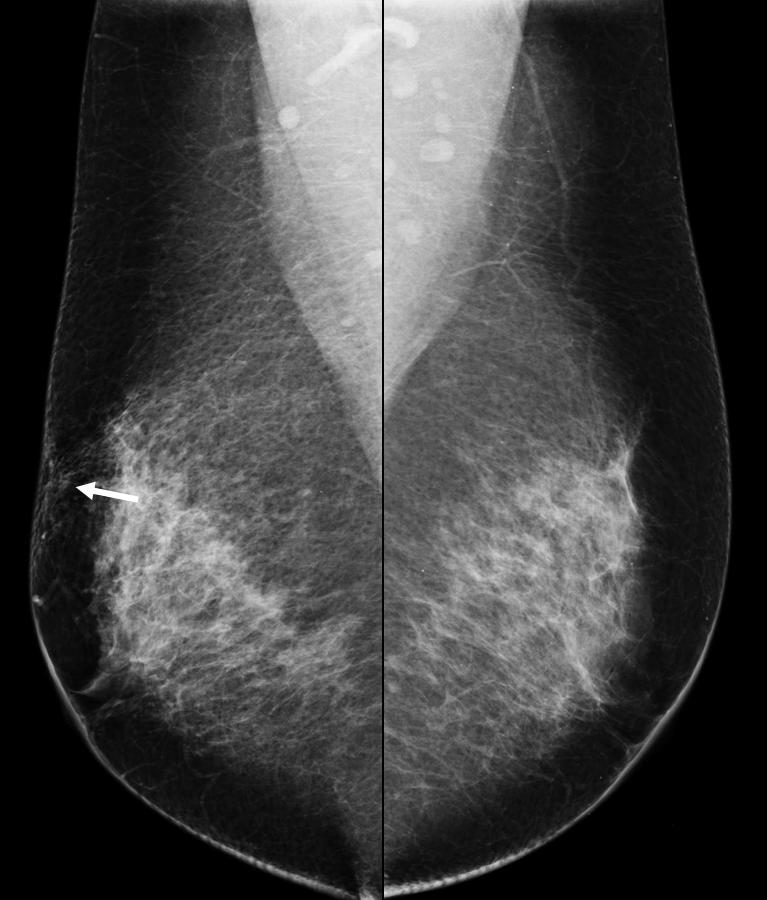 It is essential to obtain a thorough clinical history including possible trauma or surgery. 5. Imaging&pathological findings 5.1 Mammographic findings 5.1.1 Edema In many cases, edema does not manifest on the mammogram.