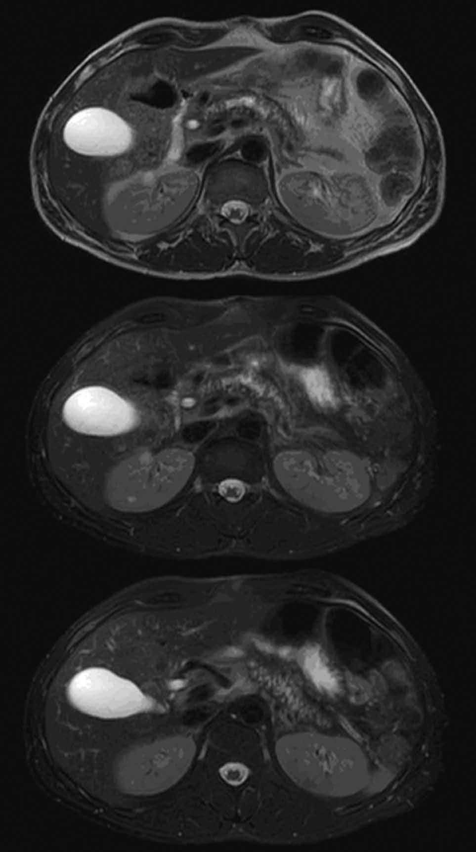 Hansen TM et al. Magnetic resonance imaging in chronic pancreatitis patients rely on both clinical and imaging information such as the Mayo Clinic diagnostic criteria [1].