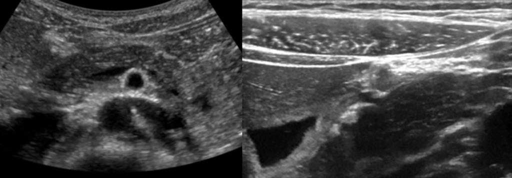 Dimcevski G et al. Modern ultrasonography in chronic pancreatitis A MR B RLL Cor MR Cap Msa Cau RLL Cor Ao Duo Cap Figure 1 Pancreas and the surrounding anatomical landmarks.