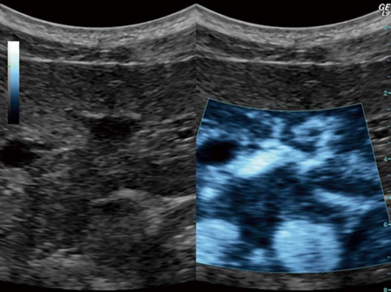Dimcevski G et al. Modern ultrasonography in chronic pancreatitis Figure 4 Ultrasound targeted treatment of pancreatic cancer using combined microbubbles and a chemotherapeutic. Left: B-mode frame.