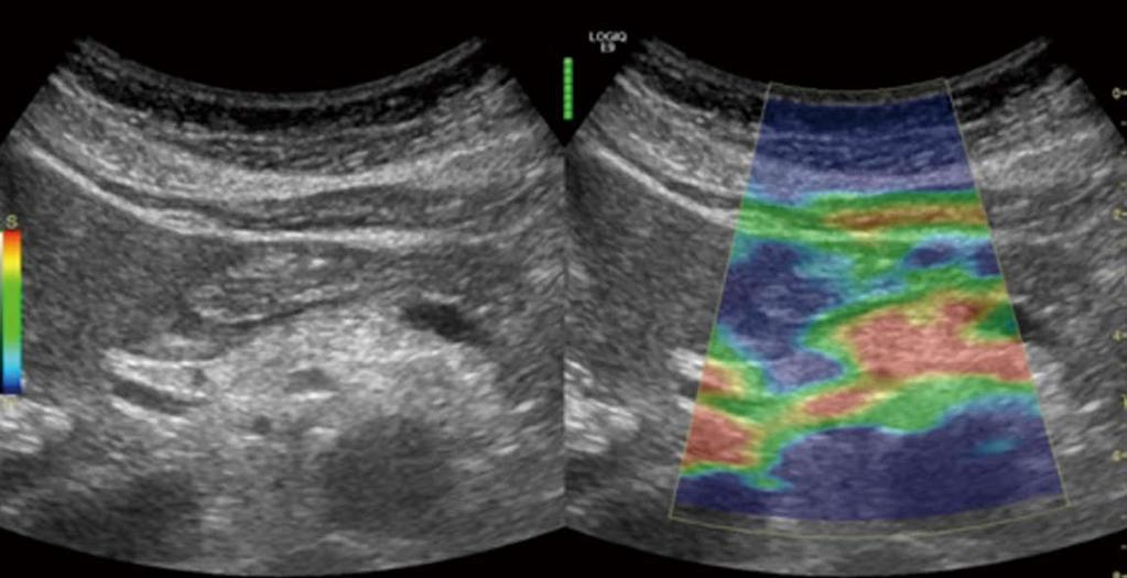 Figure 9 Elastography of the pancreas in moderate chronic pancreatitis.