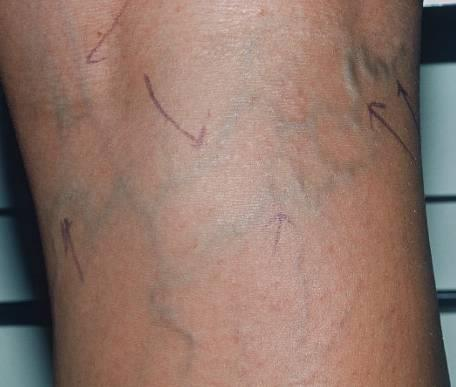 Reticular Veins Enlarged, greenish-blue appearing veins Frequently associated with