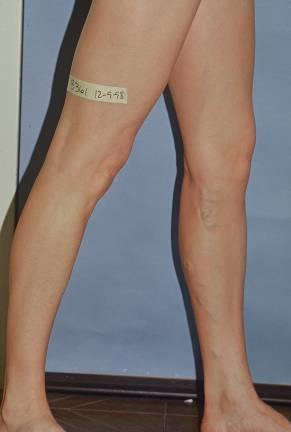 Most common finding in patients with varicose veins Varicosities most commonly along the medial thigh and calf but cannot